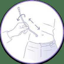 Cómo adherir sonda gastrostomía a la piel